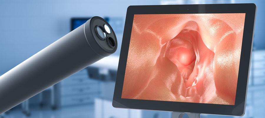 Nueva cobertura para el seguimiento no invasivo del cáncer
