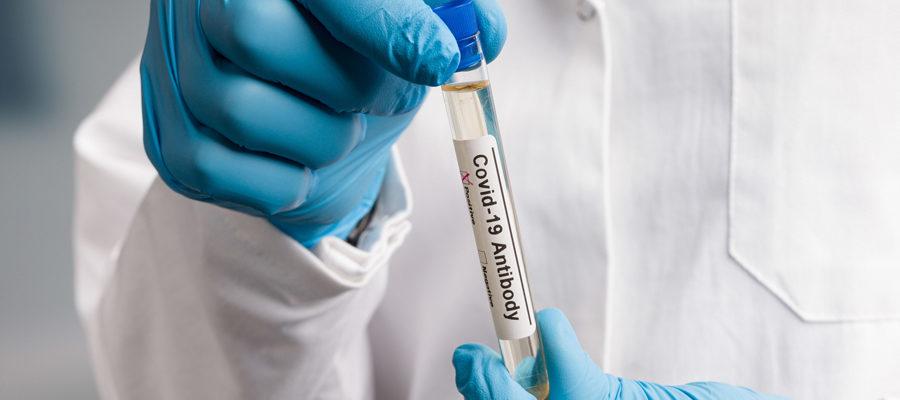 Test post-vacunación para detectar anticuerpos contra el COVID-19